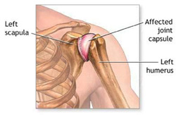 diagram of shoulder joint - frozen shoulder