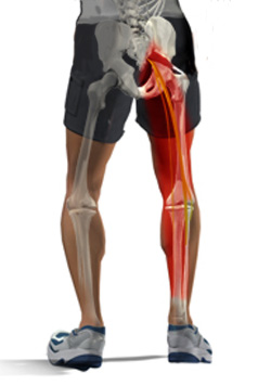 leg pain - sciatica